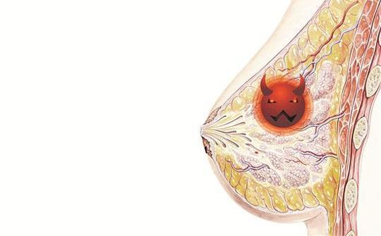 出现这五个症状尽快就医 你可能患上了乳腺癌!