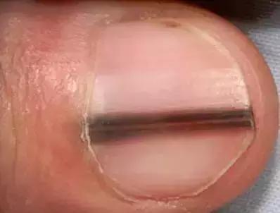 指甲上有这种颜色暗示癌变?3招养出健康指甲