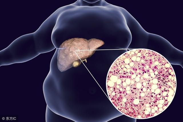 有肝炎还不养肝,肝癌会不请自来,1种植物根煎水喝,修复肝细胞