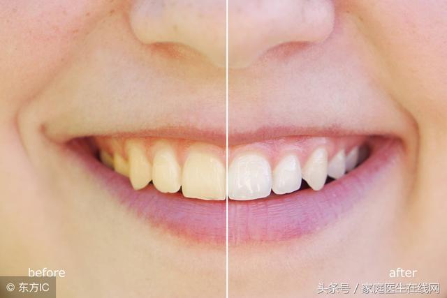 牙齿太黄很尴尬?别担心,多吃这4种食物,牙白更自信