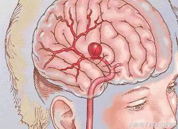 """出现10个信号,小心脑血管要""""崩溃"""",养血管做好""""五个字""""!"""