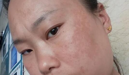 黄褐斑患者症状(一):月经量少,失眠易怒,斑点加重怎么调理?