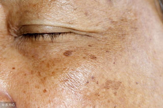 身上老喜欢长瘀斑,这是什么体质?3味中药泡水喝可以改善
